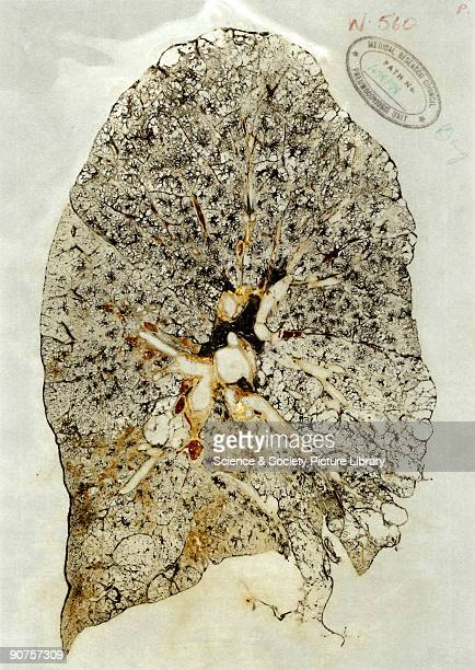 A section of the right lung blackened by coal dust in the lung disease pneumoconiosis from the collection of pathologist Dr J C Wagner The technique...