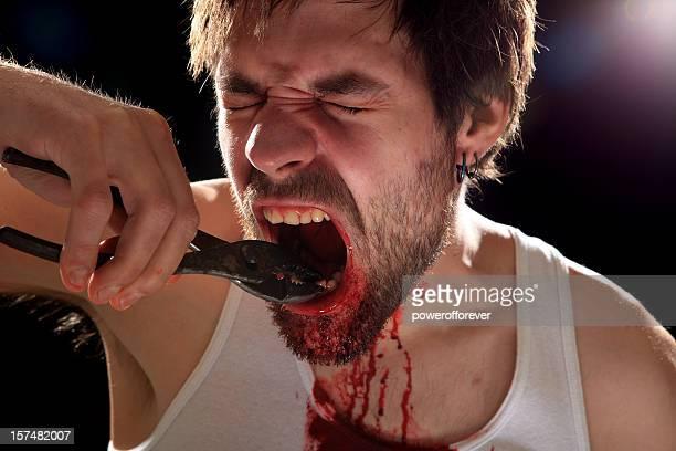 self dentistry - dentist horror stockfoto's en -beelden