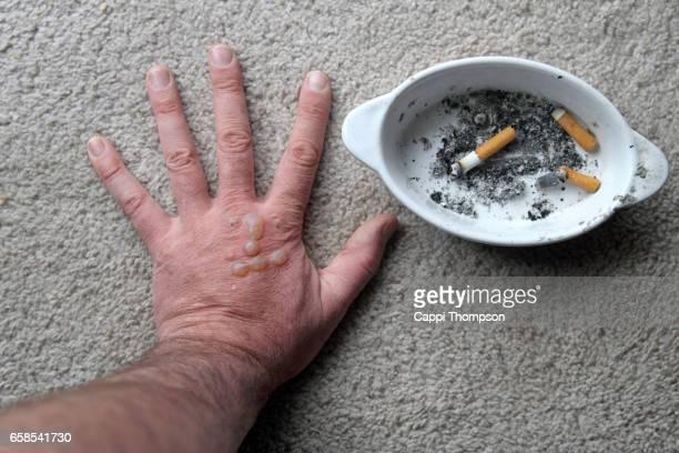 self injury burning hand - quemadura piel fotografías e imágenes de stock