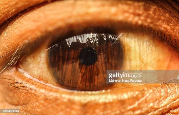 Self reflection on my husband's eye