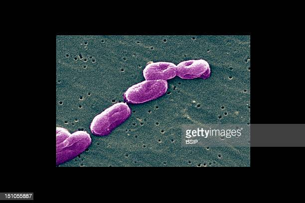 Sem Of Burkholderia Cepacia. This Bacterium Is Reponsible For Nosocomial Infections And Opportunistic Diseases Of Fragilized Persons, Mainly Those...