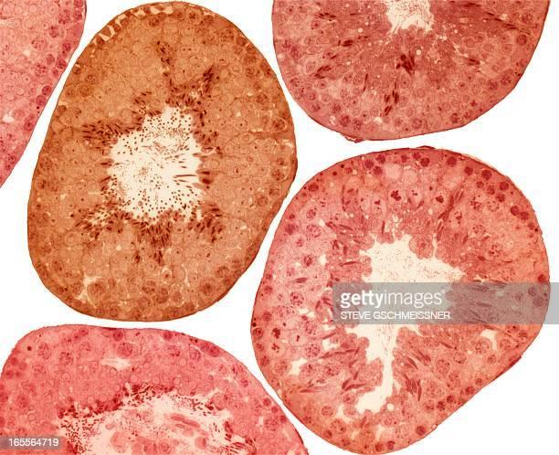 Seminiferous tubules, light micrograph