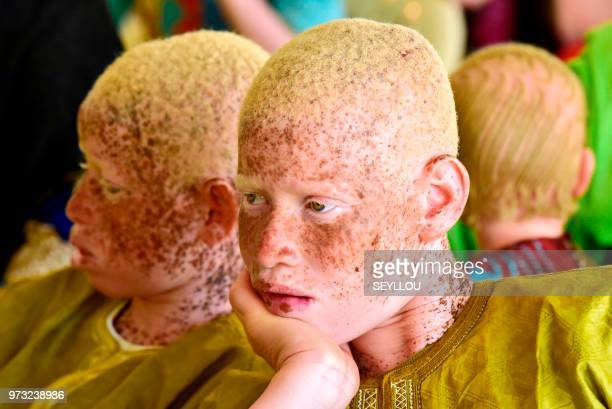 TOPSHOT Senegalese albinos people attend the International Albinism Awareness Day on June 13 at the cultural centre Douta Seck in Dakar Albinism is a...