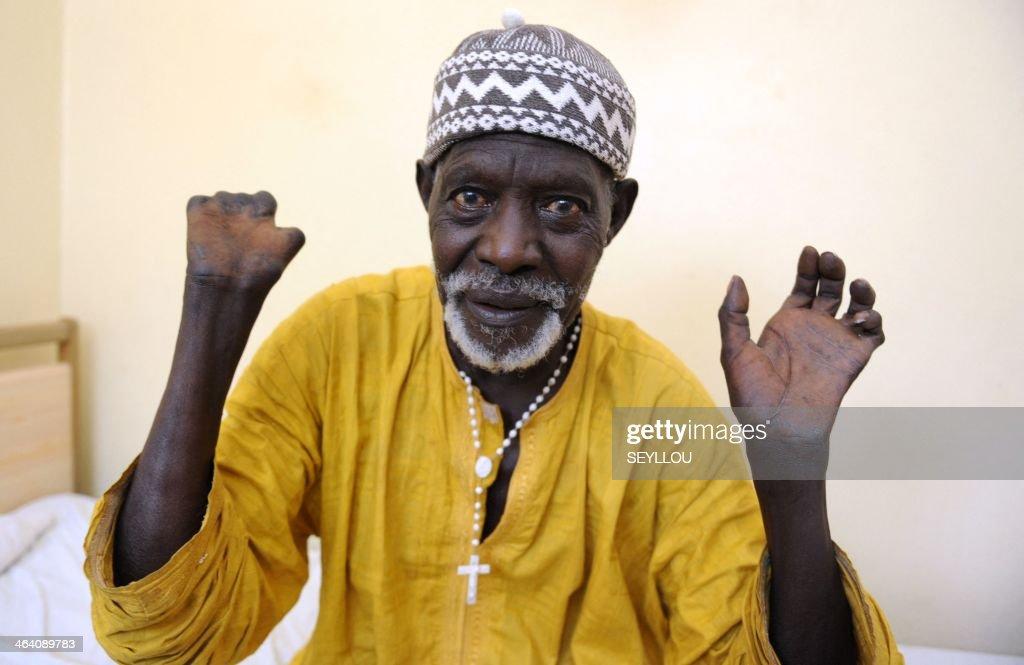 SENEGA-HEALTH-LEPROSIS-NGO : News Photo