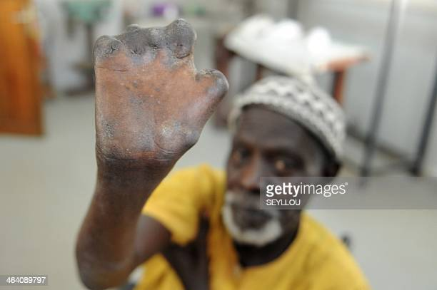 Senegalese patient Ndoffene Diene aged 77 shows his hands after receiving treatment and be cured of leprosis at the humanitarion NGO Centre...