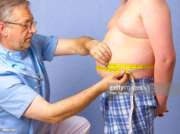 senior doctor measuring 12 year old obese boy - halbbekleidet stock-fotos und bilder