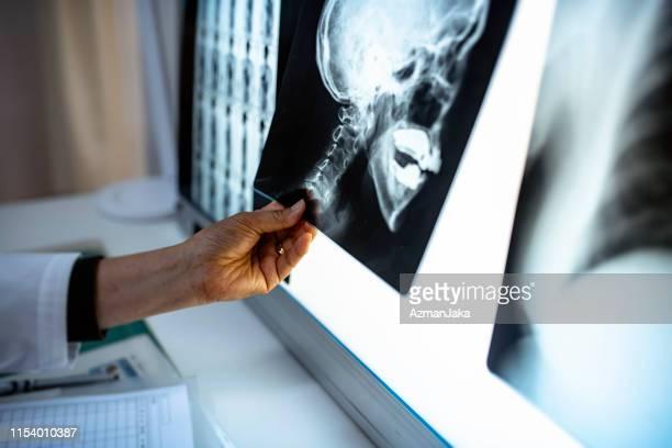senior vrouwelijke japanse arts studeren x-ray beelden - medische röntgenfoto stockfoto's en -beelden
