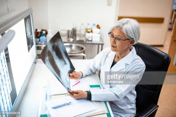 senior female japanese physician studying x-ray imagery - beautiful woman chest stock pictures, royalty-free photos & images