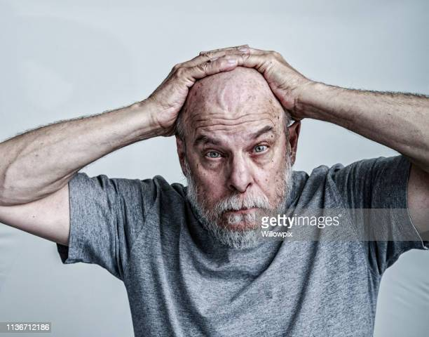 Senior Man Cancer Chemotherapy Patient Hands on Head
