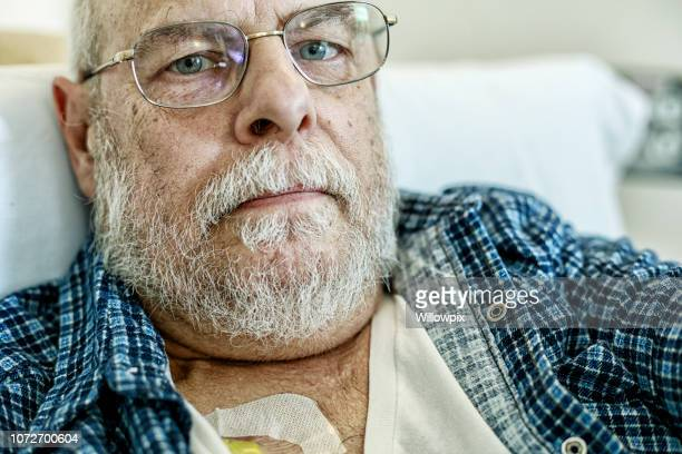 Senior Man Cancer Chemotherapy Patient Thinning Beard Hair