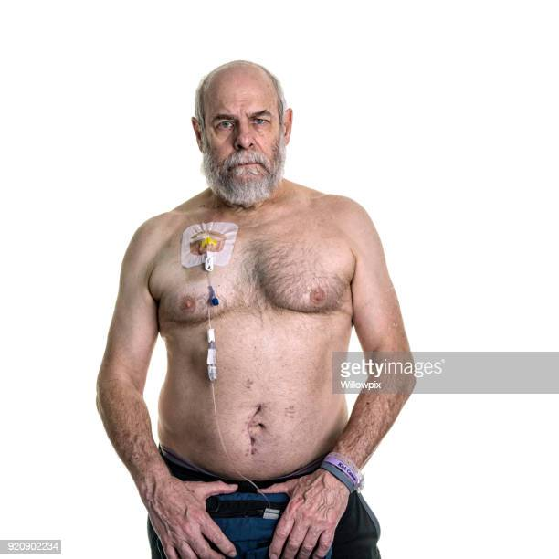 Senior Man Cancer Patient Chemotherapy IV Pump Attached To Chest Infusion Port