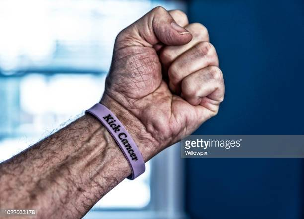 senior man cancer patient hand making a fist - survival stock pictures, royalty-free photos & images