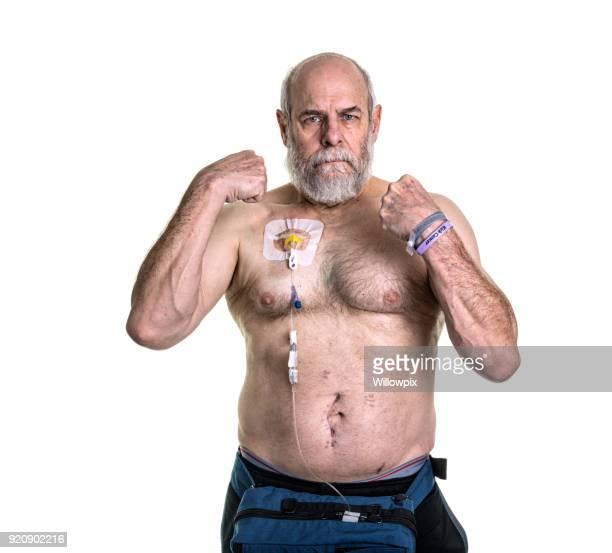 senior hombre médico paciente lucha contra la recurrencia del cáncer con quimioterapia - apendicitis fotografías e imágenes de stock