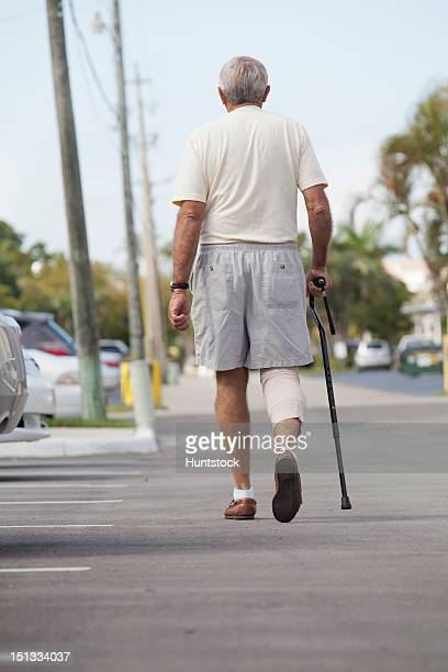 Senior man with bandage on his leg walking with the help of a cane