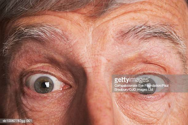 Senior man with eyes wide open and raised eyebrows, portrait, close-up