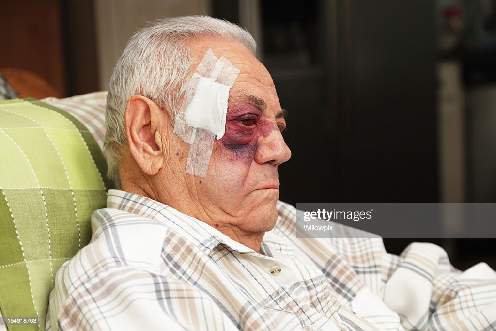 Senior Man With Injured Face and Black Eye is Unhappy : Stock Photo
