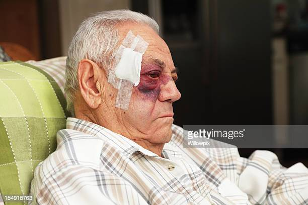 senior man with injured face and black eye is unhappy - bruise stock pictures, royalty-free photos & images