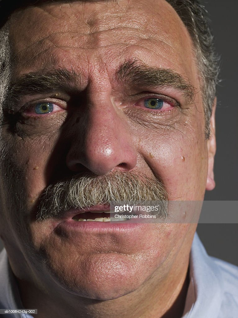 Senior man with red, tear filled eyes, portrait, close-up : Stock Photo