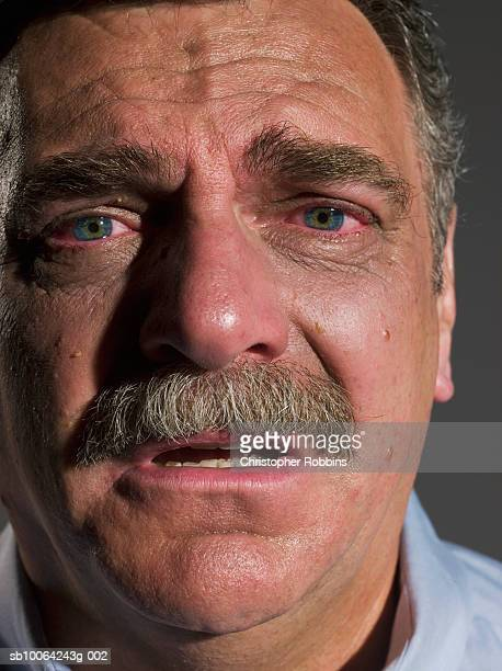 senior man with red, tear filled eyes, portrait, close-up - mustache stock pictures, royalty-free photos & images
