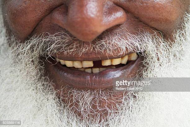 senior man's beard and mouth - rot stock photos and pictures