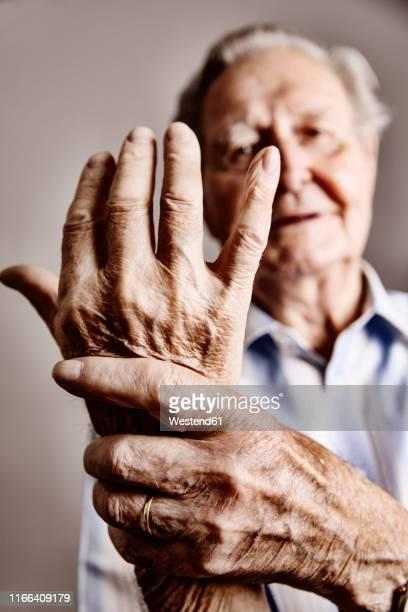 senior man's hands, close-up - rheumatoid arthritis stock pictures, royalty-free photos & images
