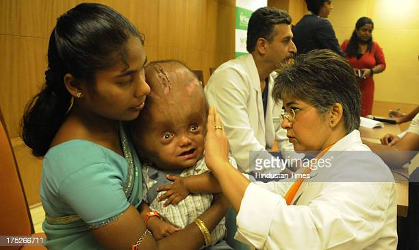 Senior Plastic Surgeon Dr Rashmi Taneja checking the baby Roona Begums head as her mother Fatima Rahman holds at Fortis Hospital on August 1 2013 in...