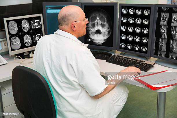 Senior radiologist of Oncology institute is examing MRI scans