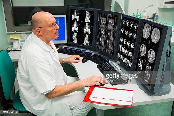senior radiologist of oncology institute is examing mri scans - oncology stock photos and pictures