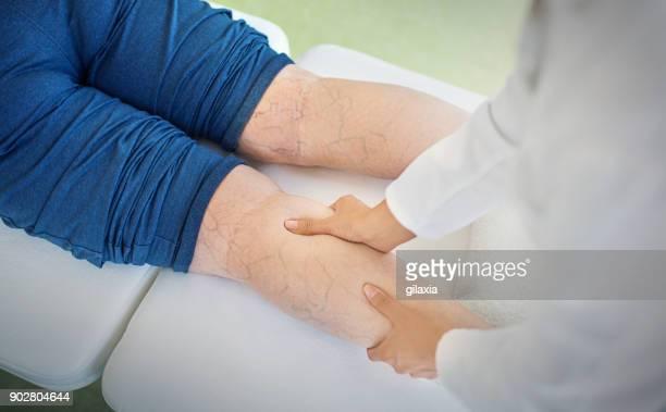mujer senior en un tratamiento de masaje. - varices fotografías e imágenes de stock