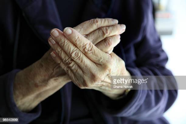Senior Woman Rubs Painful Hands