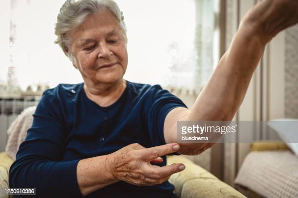 senior woman shows her elbow which suffers from rheumatism - rheumatoid arthritis stock pictures, royalty-free photos & images