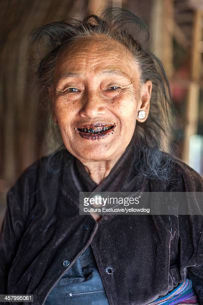 senior woman with black teeth, shan state, keng tung, burma - rotting stock pictures, royalty-free photos & images