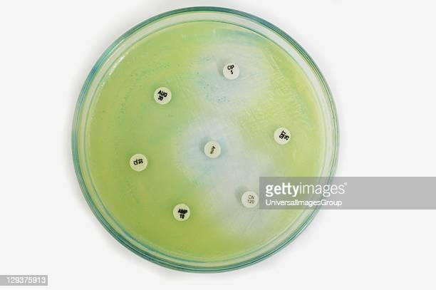 Sensitivity test on pseudomonas taken from swab A pseudomonas is a gramnegative bacterium which could can affect any part of the body but rarely...