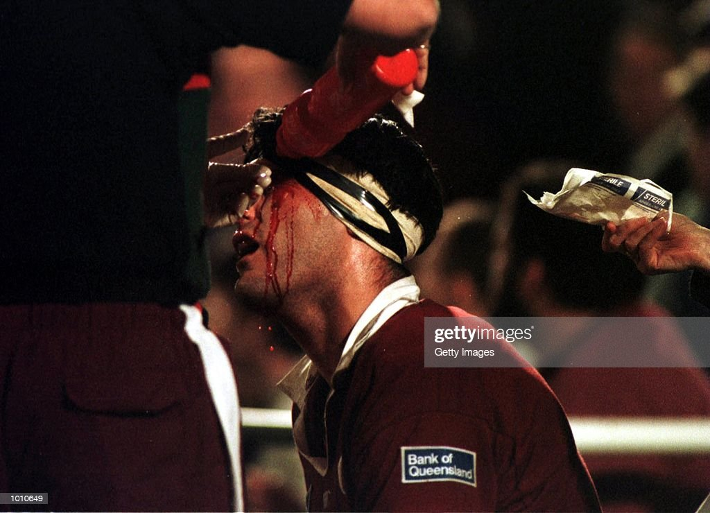 John Eales of Queensland Reds is treated for a head wound against NSW Waratahs during the National Ricoh Championship game at Ballymore, Brisbane, Australia. Mandatory Credit: Allsport Aus/ALLSPORT