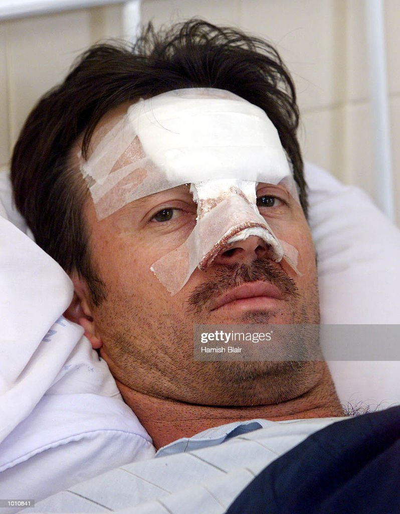 Steve Waugh of Australia wearing the wounds of his collision with Jason Gillespie yesterday, Colombo Hospital, Colombo, Sri Lanka. Mandatory Credit: Hamish Blair/ALLSPORT