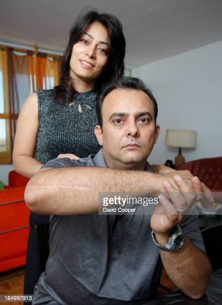 Sept 20 2009 Koroush Horri a medical doctor from Iran and his wife Fariba Darbandi show the scar on his right arm after he broke it falling onto the...