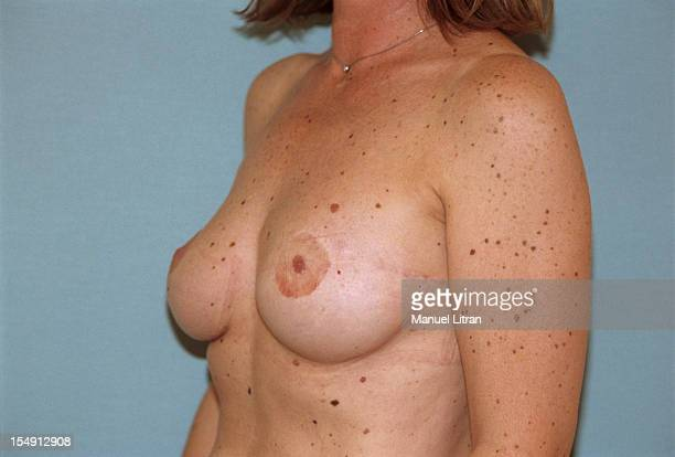 September 2000, breast reconstruction performed by Dr Nathalie Bricout on a patient, amputee left breast after breast cancer.