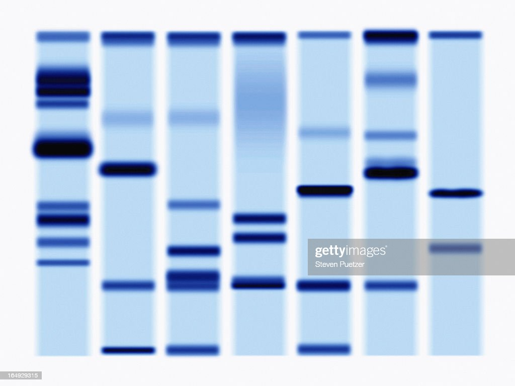 DNA Sequencing Gel, close-up : Stock Photo