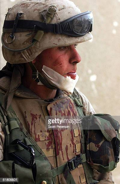 Sergeant Kevin Boyd of Pittsburgh Pennsylvania is bandaged after a graze as US Marines of the 1st Battalion 3rd Marines engage in battle with three...