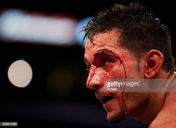 Sergio Mora has a cut as he waits to come out of his corner between rounds of his fight against Peter Manfredo Jr. During their middleweight fight on...