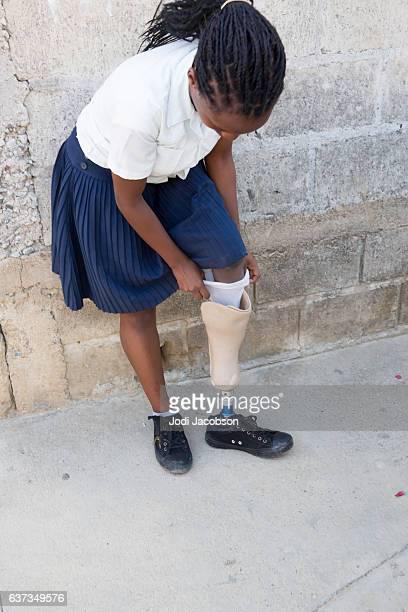 Series Medical:Honduran high school girl putting on prosthetic limb