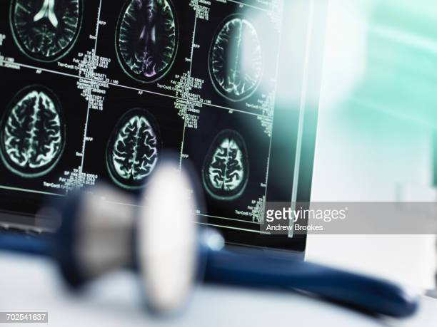Series of MRI brain scans on computer screen with stethoscope in foreground on doctors desk