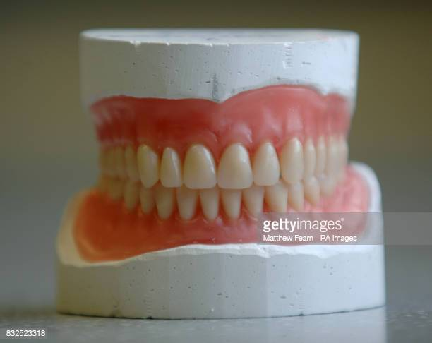 A set of denture impressions