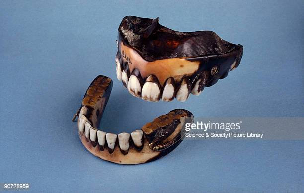 A set of dentures made of ivory with composition plate and posteriors and human anteriors with spring attachments They show extreme discolouration...