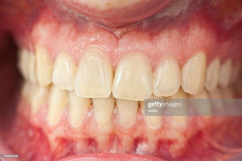 set of healthy human dentures - Zähne mit Zahnfleisch : Stock Photo