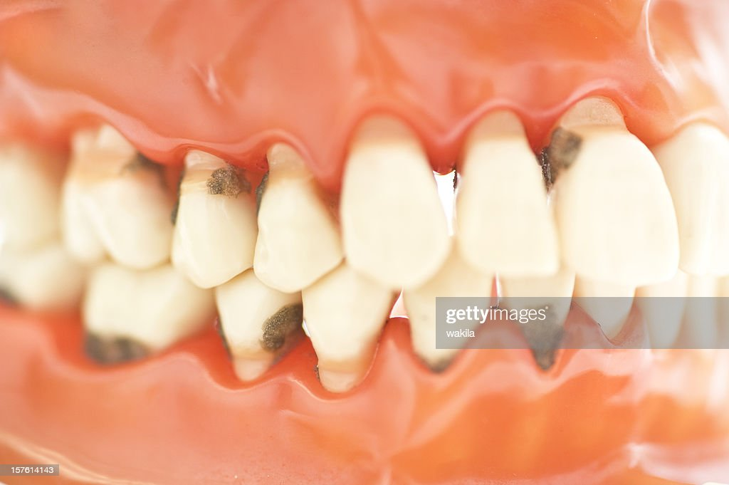 set of teeth with caries macro picture - Zähne Karies : Stock Photo