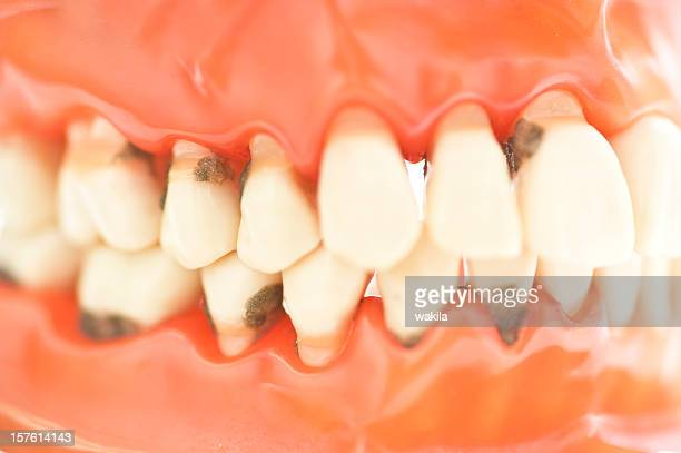 set of teeth with caries macro picture - zähne karies - rotting stock pictures, royalty-free photos & images
