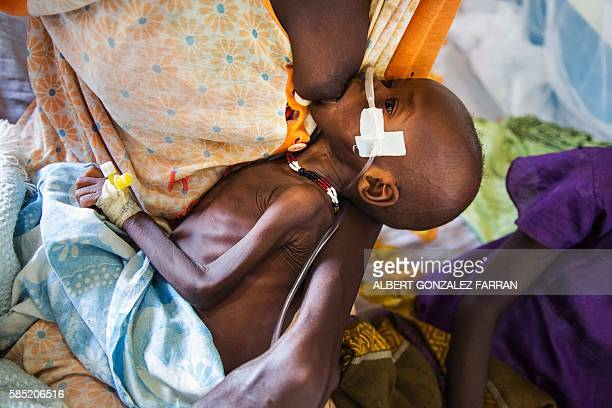 TOPSHOT Sevenmonth baby Achan Alkot who suffers severe malnutrition is breasted by her mother at the MSF Nutrition centre in Aweil Hospital on 2...