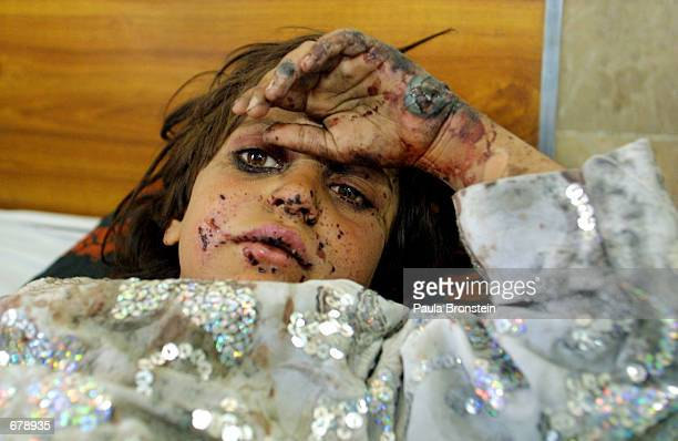 Sevenyearold Fermina Bibi from Kandahar Afghanistan lies wounded in a hospital bed November 2 2001 at Civil Hospital in Quetta Pakistan She and her...