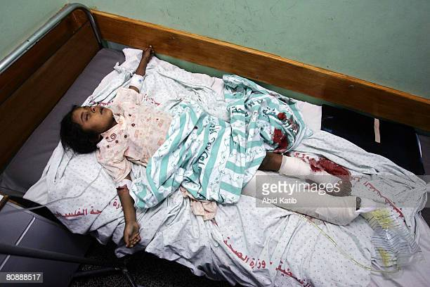Sevenyearold Shayma Abu Mietiq the only child of mother Khadra Abu Mietiq to survive an Israeli strike lies on a hospital bed on April 28 2008 in...
